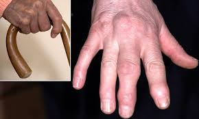 Sausage fingers to knobbly knuckles: The causes of hand pain - and ...