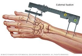 external fixator external fixation of the wrist mayo clinic