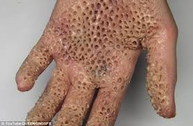 Fear Of Patterns Classy This Woman's Terrifying Facebook Posts Are Triggering Trypophobia