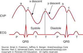 Central Venous Pressure Measurements Central Venous Pressure Anesthesiology Core Review Part