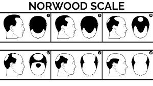 Male Hair Loss Chicago Hair Surgeon