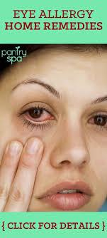 burning eyes allergies