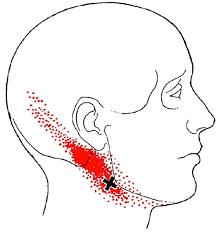 Pijn linkerkant nek en hoofd