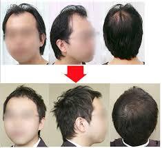 図解でわかる前髪がはげる7つの原因と今日からできる対策