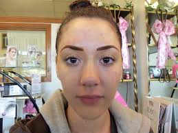 reshaped brows imately after proceedure