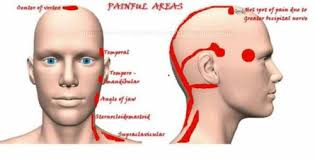 Cluster Headache Location Chart Causes Severe Headache Types Of Headaches