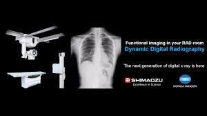 Digital Radiography Dynamic Digital Radiography Shimadzu Medical Systems Usa