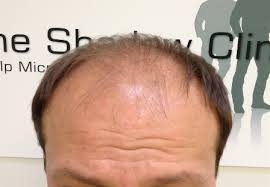 Male Pattern Baldness Cure Amazing Unique Male Pattern Baldness Cure Available Online