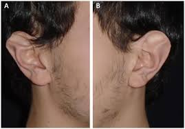 Rbcp Management Of Stahls Ear A Case Report