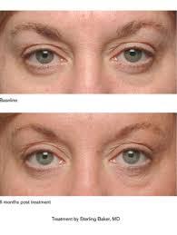crepey eyelids