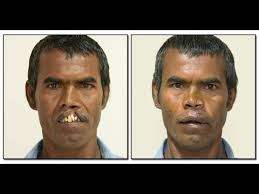 cleft lip repair adult cleft lip surgery youtube