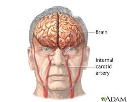 arteries of the face stroke a d a m interactive anatomy encyclopedia