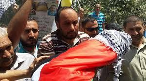 الضفة الغربية - الأمين العام للأمم المتحدة يدين قتل الرضيع علي دوابشة بنابلس