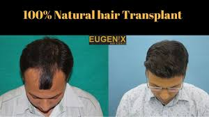 best hair transplant in delhi at affordable cost eugenix hair transplant sciences
