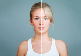 how to treat rosacea and skin redness