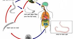 Ascariasis Roundworms Ascariasis Welcome To Nirogi Nepal Welcome To Nirogi Nepal