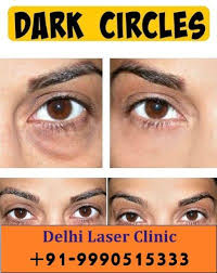 have dark circles under your eye looking for the permanent solution of under eye dark circles then read about laser treatment process cost and other