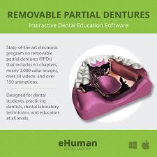 Principles Of Removable Partial Denture Design Removable Partial Dentures