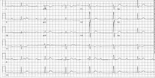Dr Smiths Ecg Blog