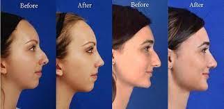 Rhinoplasty does not help with sinus problems. Rhinoplasty Ohsu