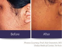 laser treatments radiance medspa