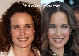 an macdowell has shocked everyone with her new youthful face she had plastic surgery a facelift that was focused on her eyes jawline forehead