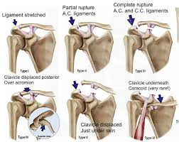 ac joint. rockwood classification system (http://bostonshoulderinstitute.com/patient-resources/ ac joint n