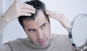 Male Pattern Baldness Cure Magnificent MALE PATTERN BALDNESS Treatment In Bangkok Causes Symptoms Of