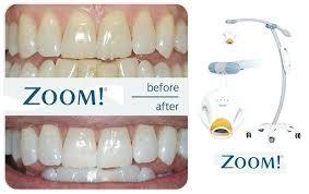 Shades Of White Teeth Ninety5 Co