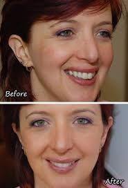 bare minerals before and after. as bare minerals before and after