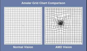 Amsler Grid Chart Comparison Macular Degeneration Grid