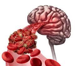 stroke risk ile ilgili görsel sonucu