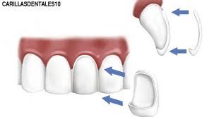 carillas dentales todo lo que hay que saber sobre carillas dentales descubrelo
