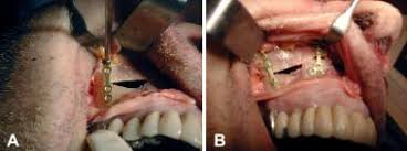 Le Fort Fracture Maxillary And Le Fort Fractures Treatment Management Medical