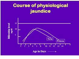 Neonatal Jaundice 2017