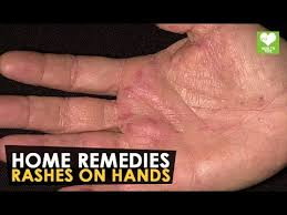 Rashes On Hands - Home Remedies | Health Tone Tips - YouTube
