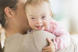 Image result for down syndrome baby