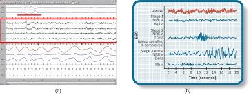 Brain Waves Frequency Chart Stages Of Sleep Introduction To Psychology
