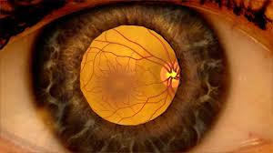 Image result for diabetic retinopathy