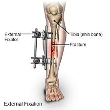external fixator external fixation for leg fractures in children what you need to know