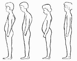 Сколиоз позвоночника сутулость нарушение осанки у детей и  Сколиоз позвоночника сутулость нарушение осанки лечение