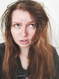 one in five s suffer hair loss