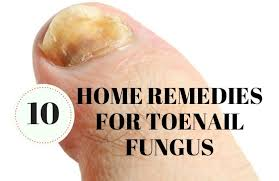 home remes for toenail fungus cure