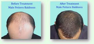 Male Pattern Baldness Cure Fascinating Baldness