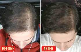 emu oil for hair growth how to use