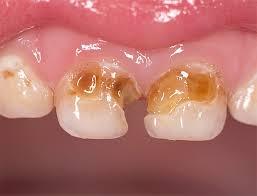 Как защитить зубы от кариеса и предотвратить его появление Рассматриваемые далее способы защиты зубов будут особенно полезны тем у кого уже наблюдаются кариозные поражения