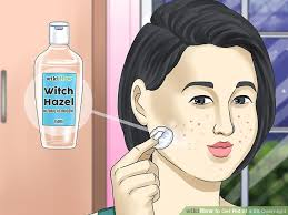 image titled get rid of a zit overnight step 7