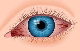 Resultado de imagen de irritated eyes
