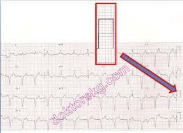 Calibration Of The Electrocardiogram Ecg Ekg Ecg