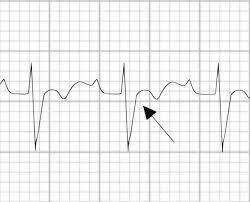 Epsilon Wave Litfl Medical Blog Ecg Library Basics